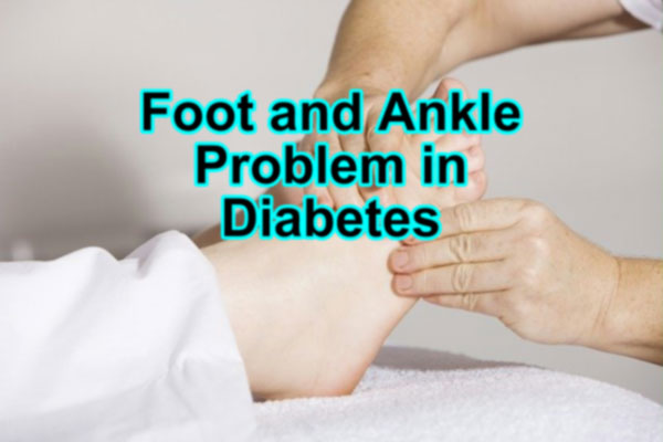 Foot and ankle problems